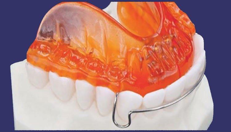 Apparecchi Funzionali - LTO Ortodonzia